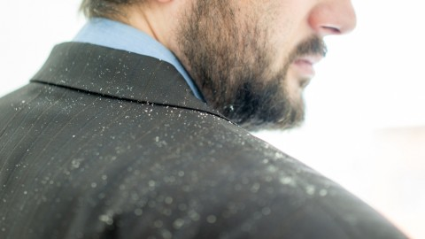 Hilarious, Over-The-Top Dandruff Ad